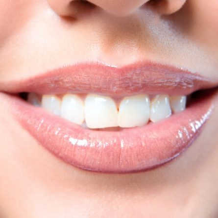 Matthews Dental Associates - Dr. Dan Matthews DMD - Dr. Bruce Matthews DDS - Dr. Katie Matthews DDS - Pediatric Dentistry - Comprehensive Dental Care - Dental Mouth Guard