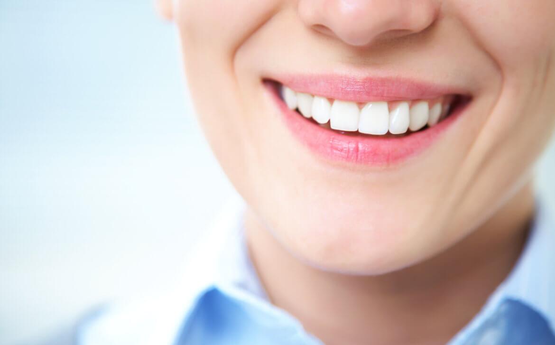 Matthews Dental Associates - Dr. Dan Matthews DMD - Dr. Bruce Matthews DDS - Dr. Katie Matthews DDS - Invisalign Picture