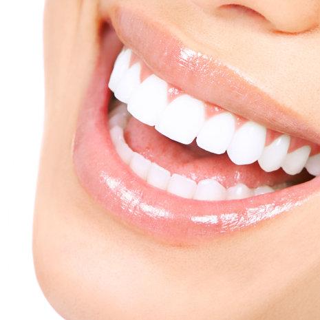Matthews Dental Associates - Dr. Dan Matthews DMD - Dr. Bruce Matthews DDS - Dr. Katie Matthews DDS - Veneers and Laminates