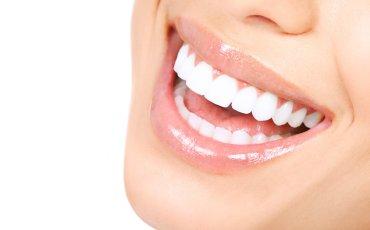 Matthews Dental Associates - Dr. Dan Matthews DMD - Dr. Bruce Matthews DDS - Dr. Katie Matthews DDS - Veneers and Laminates Picture